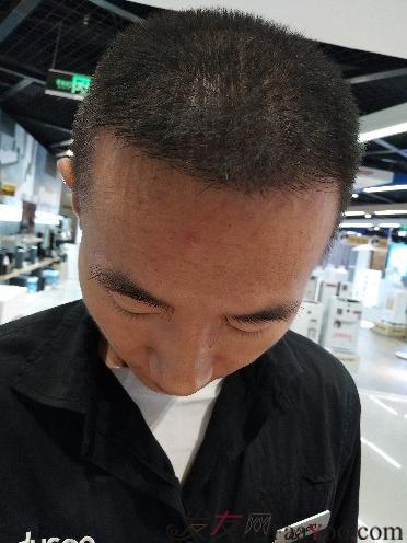 我在上海大麦微针植发后,6个月的效果经历