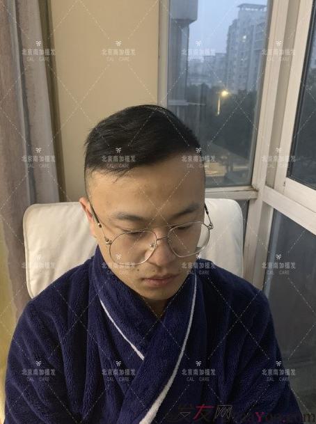 北京南加高医生4000单位大面积植发植发日记