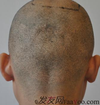 植发案例——我的三次植发经历