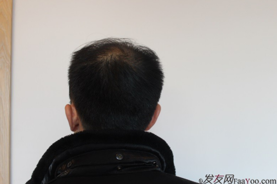 北京大面积植发4000单位一年恢复全程记录