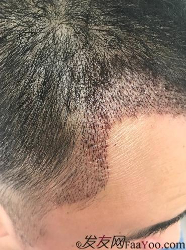 西安大麦微针前额植发,切勿病急乱投医看看我的经历
