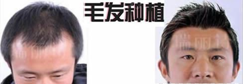 上海瑞丽诗毛发专科医院的评价怎么样