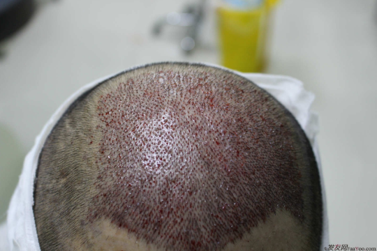 大麦微针植发4000单位,感受头发从稀疏到茂密