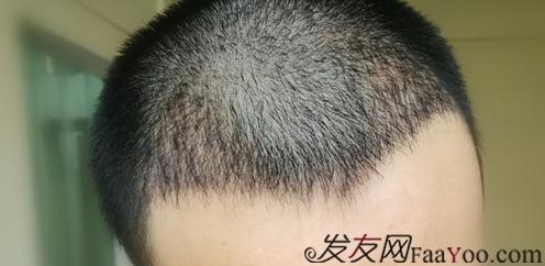 广州大麦微针植发2000个单位,我来分享一下植发经历