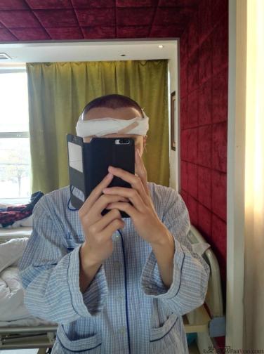 记录我在上海大麦微针的植发经历(2500单位),真是越来越自信了