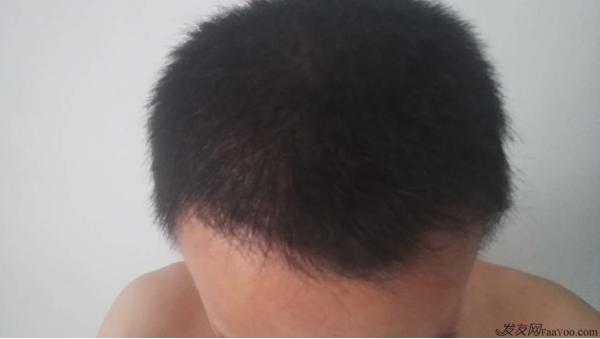 记录我在上海大麦微针的植发经历2500单位,真是越来越自信了