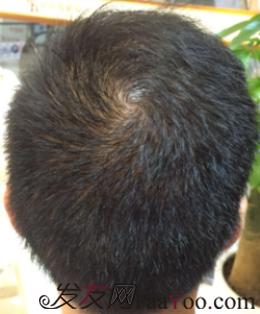 深圳大麦微针植发头顶大面积加密,4048单位 一起见证奇迹
