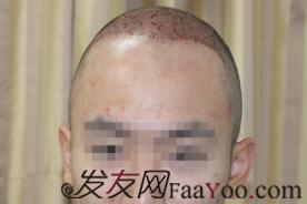 北京植发记PSH无痕加密3500毛囊单位,术后一年对比一下