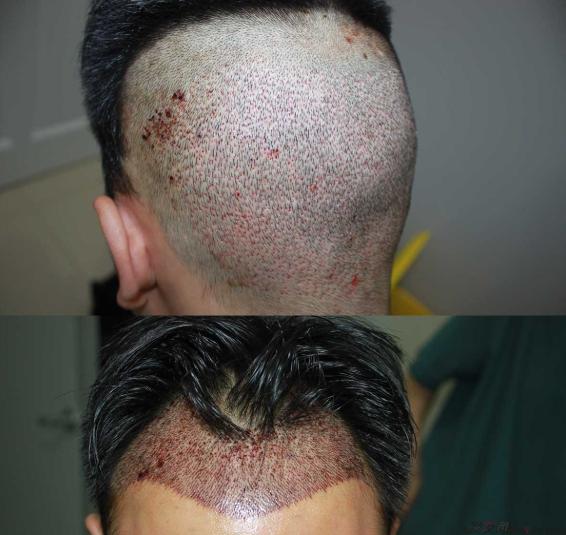 深圳大麦微针3000单位前额植发,九个月的变化让人眼前一亮