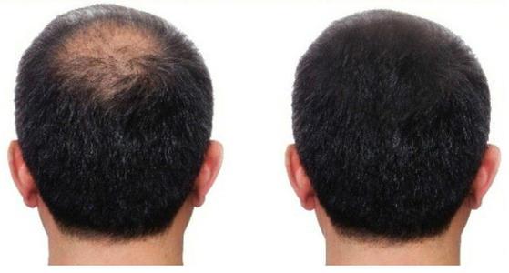 头发纤维粉有没有副作用