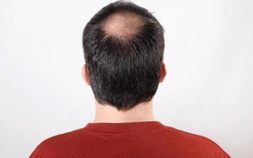植发后还会脱落吗?能够维持多久?