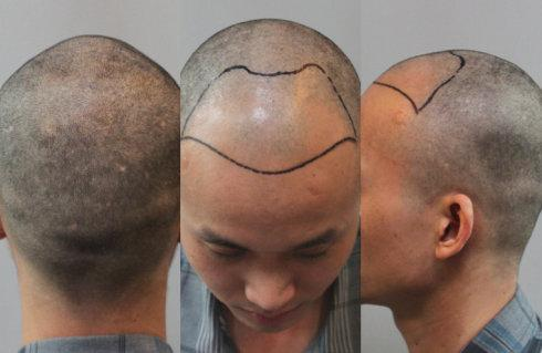 植发后还会脱落吗?能够维持多久呢?