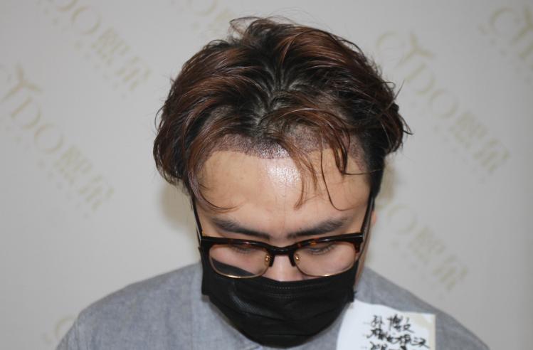 发际线植发一般需要多少毛囊