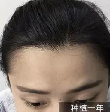 深圳种植了2000单位发际线,看术后效果大麦微针让我太满意了