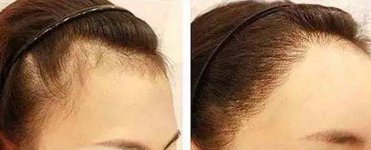 成都植发大概需要多少钱?
