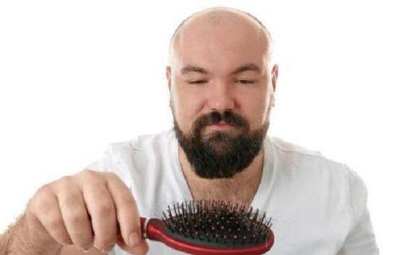 秃顶植发需要多少毛囊