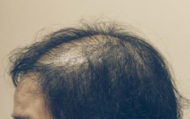 秃顶植发后还会掉吗