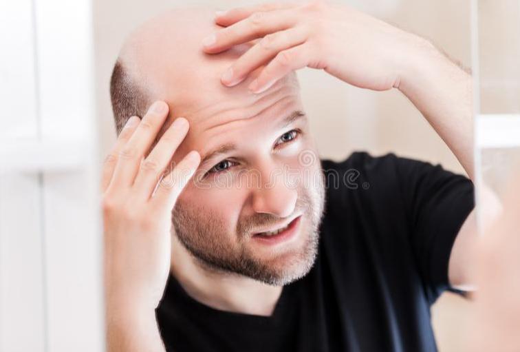 秃顶能不能植发