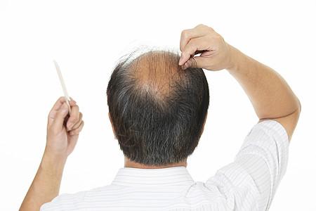秃顶植发可以好吗