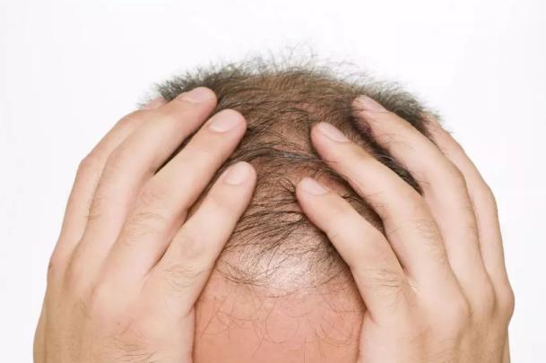 完全秃顶可以植发吗