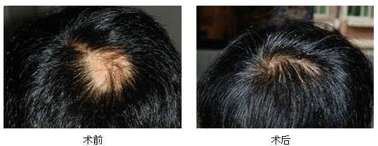 江西南昌毛发移植1500单位,治疗斑秃效果看看好不好
