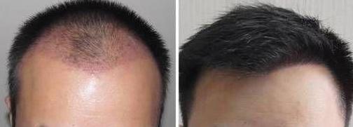 我在河南郑州植发研究院种的2500单位头发,我亲身经历告诉你靠不靠谱