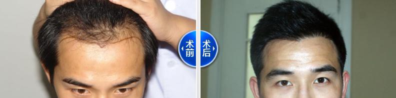 天津新发现发际线植发2000单位,看真实案例讲述植发后效果好不好
