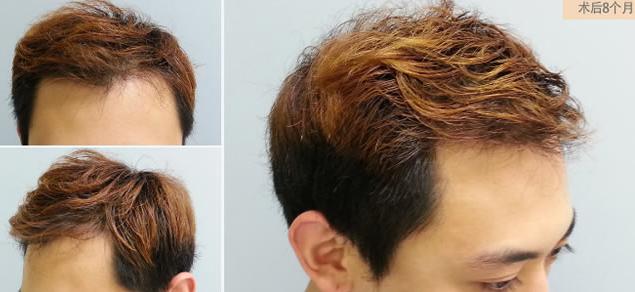 我在深圳倍生植了发,3000单位头顶植发,花费三万元看看效果贵不贵