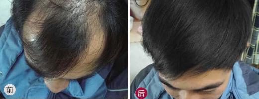 广州新发现治疗脂溢性脱发患者,植发3000单位看看效果如何