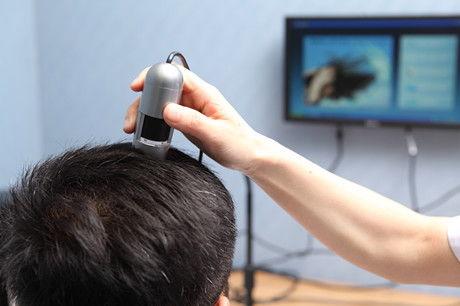 南昌植发手术需要多少费用,我在南昌植发2000个毛囊效果分享