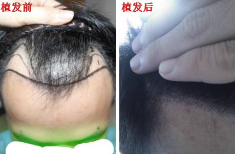 到郑州省育发植发研究院进行额角发际线植发手术,看看植发后恢复效果怎么样