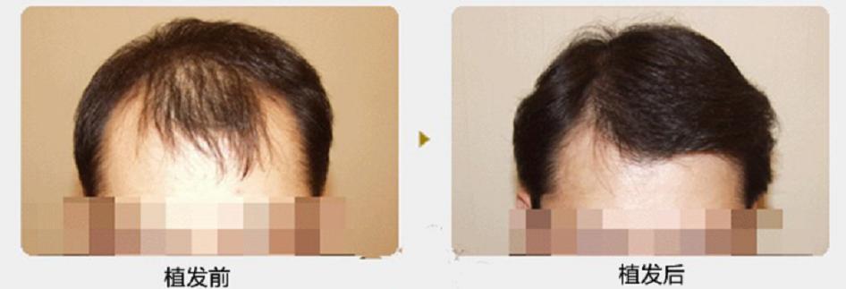 徐州植发好不好?分享我在徐州的植发经历