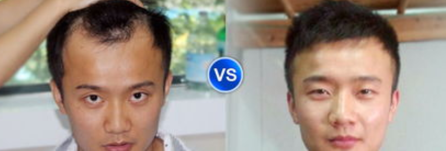武汉植发多少钱一个毛囊单位?分享我在武汉新生植发经历