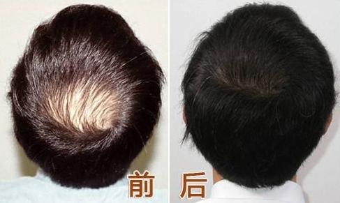 南京种植头发一般需要多少钱?