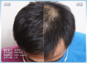 南宁种植头发一个毛囊多少钱?植发贵不贵?