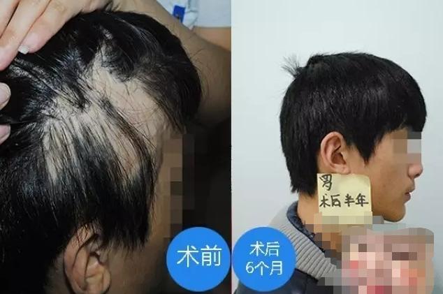 常州植发效果好不好?我是疤痕植发在常州百年植发的真实经历