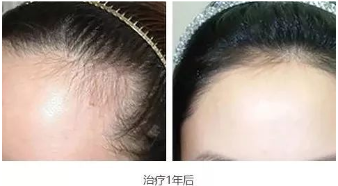 东莞植发好不好?在东莞正规植发医院进行手术后的真实分享