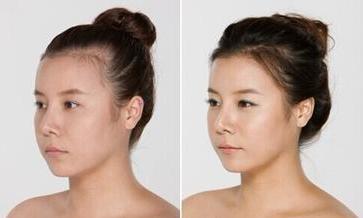 沈阳种植头发一个毛囊单位多少钱?沈阳植发贵不贵?