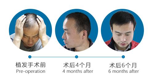 昆明植发手术需要多少费用?什么原因导致男性脱发的?