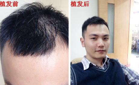 长沙种植头发3000单位案例,长沙植发效果好不好