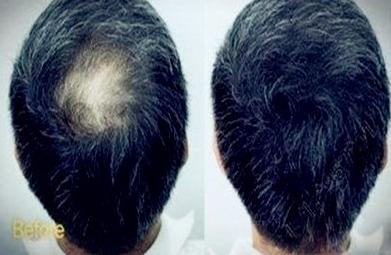 广州植发贵不贵,看看我在新发现的植发效果怎么样