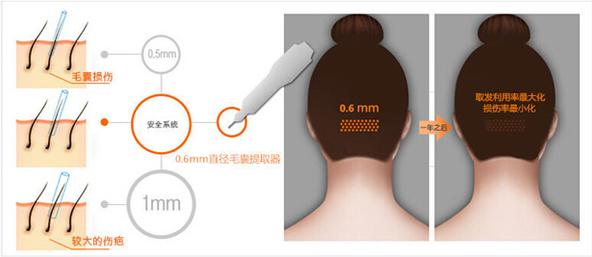 上海植发多少钱一个毛囊单位?上海做一次植发多少钱?