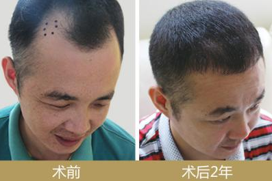 邯郸植发费用贵不贵啊?邯郸做场毛发移植手术得多少钱啊?