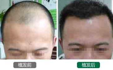 重庆的植发价格大概多少钱?重庆的植发手术价格贵不贵