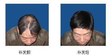 安徽植发手术费用大概多少钱?