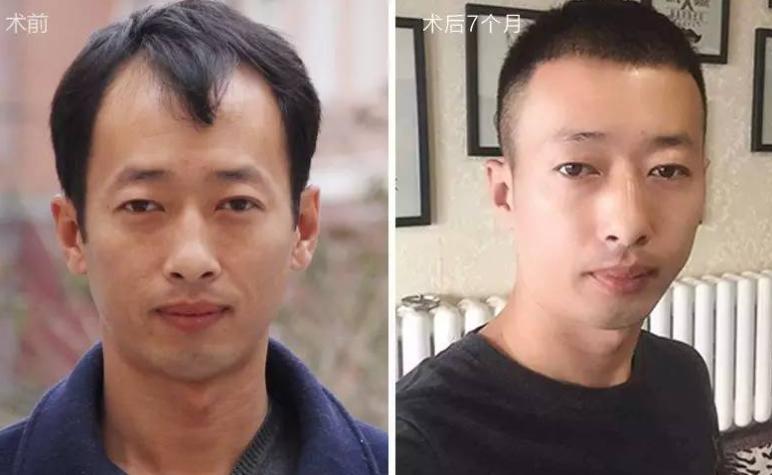 武汉植发一次需要多少钱?