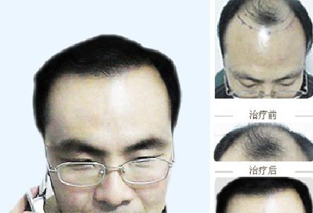 成都植发大概需要多少费用?贵不贵?