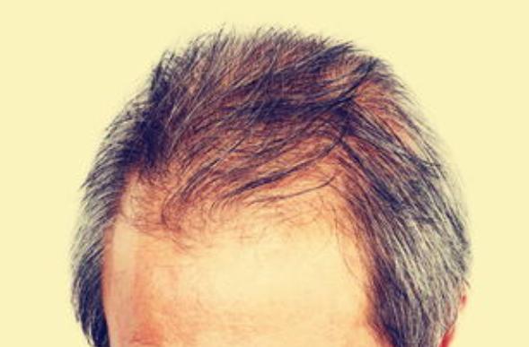 河南安阳植发一次需要多少钱,术后需要注意什么?
