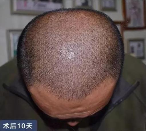 郑州正规的植发医院哪家比较好