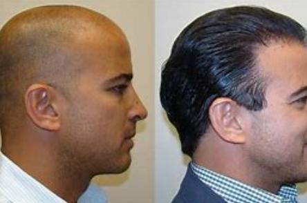 在无锡有名的植发医院植发,一般得多少钱?